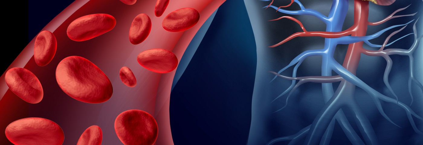Symptom-free Patients with HAE Show Signs of Atherosclerosis in Peripheral Vessels, Study Finds